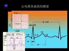 台湾某無限心電圖分析應用股权融资600万-800万元